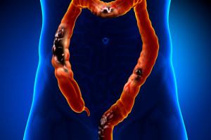 Tolerance léčby metastatického kolorektálního karcinomu u 75leté pacientky. Jaké jsou závěry?