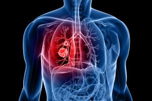 Osimertinib v léčbě EGFR mutovaného plicního karcinomu s T790M rezistentní mutací