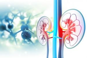 Masivně generalizovaný světlobuněčný karcinom ledviny u 81letého pacienta