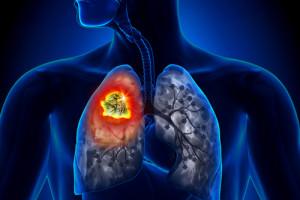 Generalizovaný malobuněčný karcinom plic