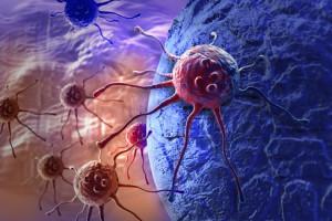 Metastatický karcinom prostaty – výsledky nových studií