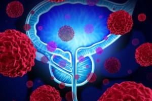 Nové možnosti léčby svalovinu neinvadujících nádorů měchýře (NMIBC) nereagujících na léčbu BCG (BCG unresponsive)