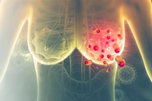 Nové indikační omezení u účinné látky trastuzumab