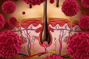 Nové indikační omezení účinné látky avelumab