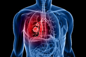 Změny indikačního omezení u účinných látek alectinibu, ceritinibu a everolimu