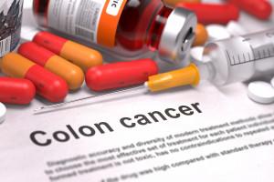 Hranice pro screening kolorektálního karcinomu by měla být nižší