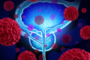 Současné indikace PD-1 a PD-L1 inhibitorů v onkourologii a situace v ČR